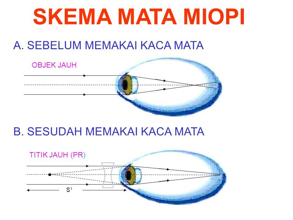  Untuk mata miopi : S` = -PR miopi S = ∼  Sehingga : 1/f = 1/S + 1/S` = P P = 1/∼ + 1/-PR = 1/-PR Kuat lensa Dalam satuan 1/m (dioptri) Sehingga: P = - 100/PR