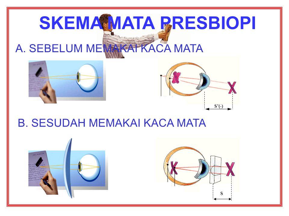 3. Mata Tua (PRESBIOPI) Penderita presbiopi dapat di tolong dengan kaca mata berlensa rangkap (bifokal) Penderita presbiopi tidak dapat melihat benda