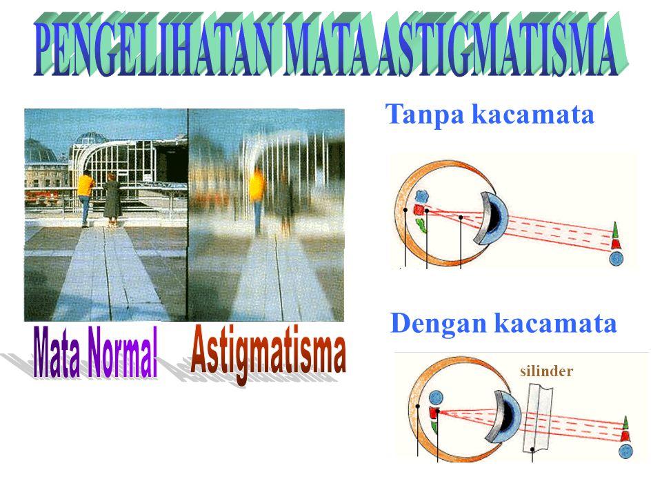 4. Astigmatisma Penderita Astigmtisma dapat di tolong dengan kaca mata berlensa silindris Penderita Asigmatisma akibat dari kornea mata yang tidak ber