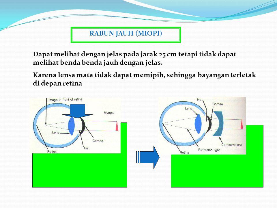 CACAT MATA Yaitu terjadi ketidaknormalan pada mata, dan dapat di atasi dengan memakai kacamata, lensa kontak atau melalui suatu operasi JENISNYA Rabun