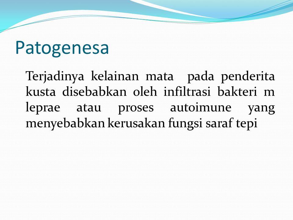 Patogenesa Terjadinya kelainan mata pada penderita kusta disebabkan oleh infiltrasi bakteri m leprae atau proses autoimune yang menyebabkan kerusakan