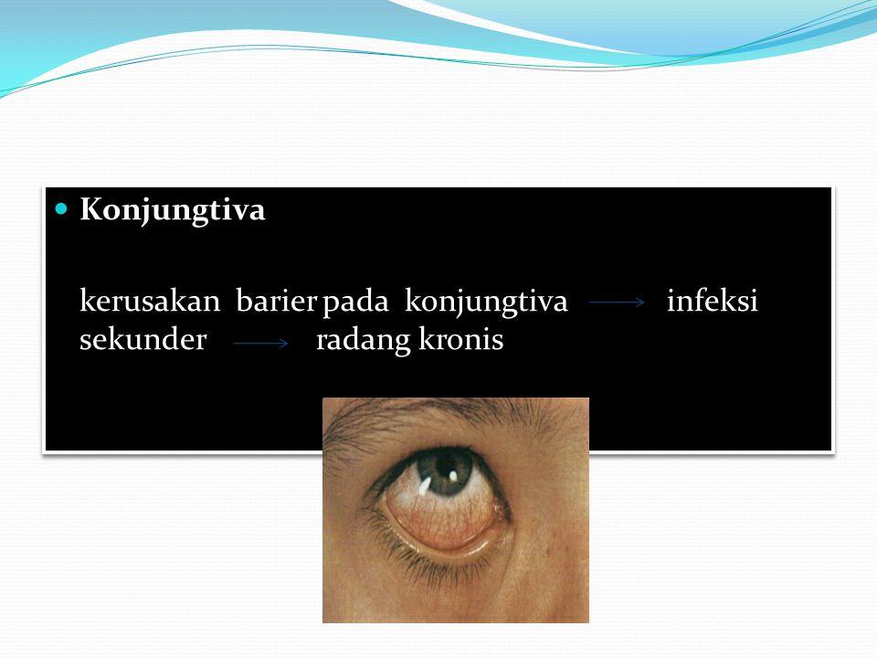 Konjungtiva kerusakan barier pada konjungtivainfeksi sekunderradang kronis Konjungtiva kerusakan barier pada konjungtivainfeksi sekunderradang kronis
