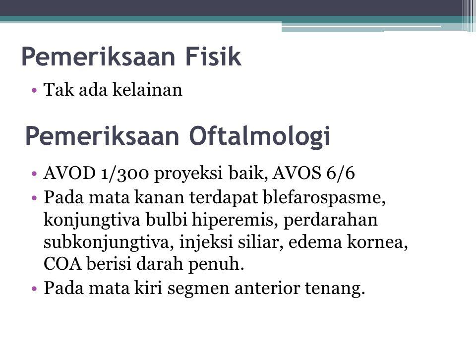 Pemeriksaan Fisik Tak ada kelainan Pemeriksaan Oftalmologi AVOD 1/300 proyeksi baik, AVOS 6/6 Pada mata kanan terdapat blefarospasme, konjungtiva bulb