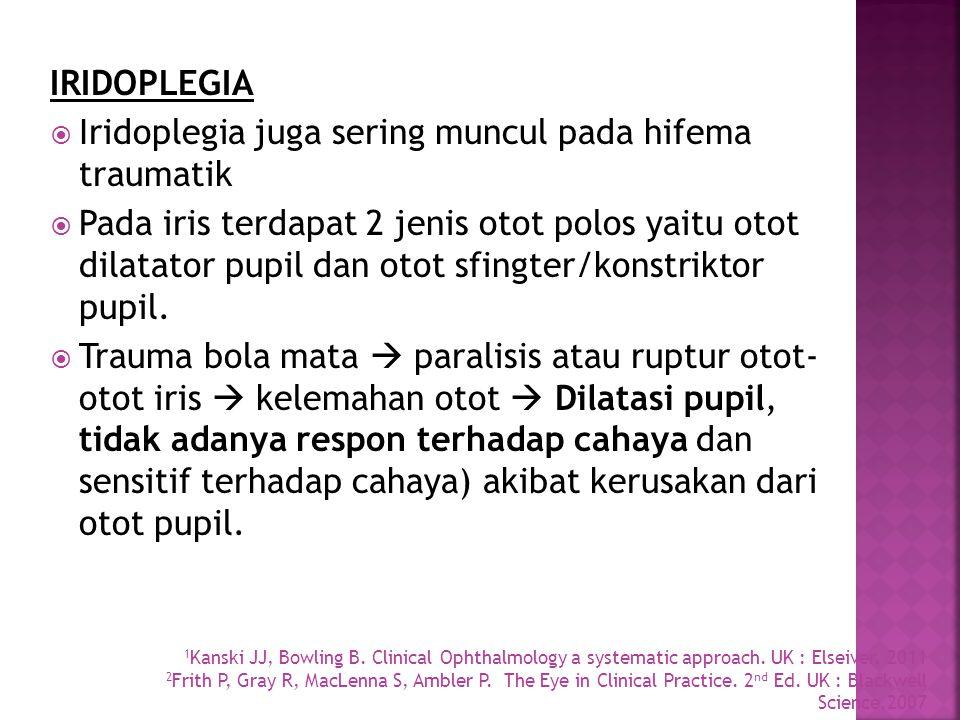 IRIDOPLEGIA  Iridoplegia juga sering muncul pada hifema traumatik  Pada iris terdapat 2 jenis otot polos yaitu otot dilatator pupil dan otot sfingte