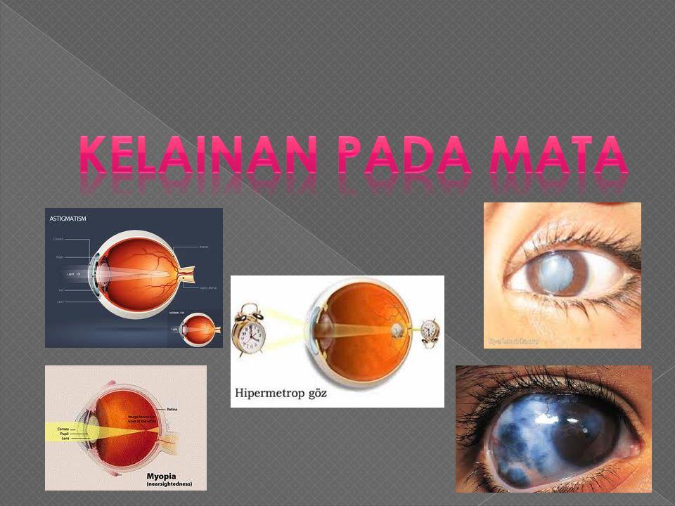  Pigmen lembayung dari sel konus merupakan senyawa iodopsin yang merupakan gabungan antara retinin dan opsin. Ada tiga macam sel konus, yaitu sel yan