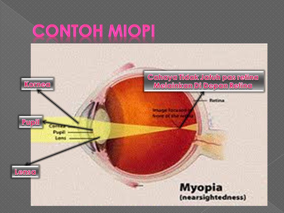  Miopi atau mata dekat adalah cacat mata yang disebabkan oleh bola mata terlalu panjang sehingga bayang-bayang dari benda yang jaraknya jauh akan jat