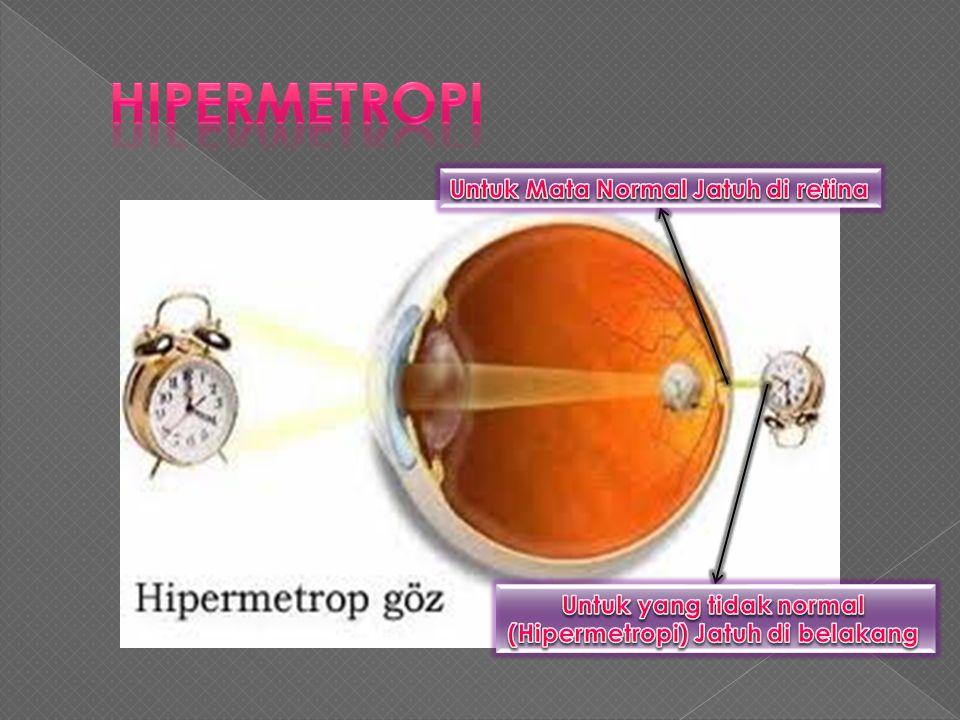  HIPERMETROPI adalah cacat mata yang di karenakan Bola Mata Terlalu pendek. Jika bayangan MIOPI jatuh didepan Retina. Untuk HIPERMETROPI bayangan Jat