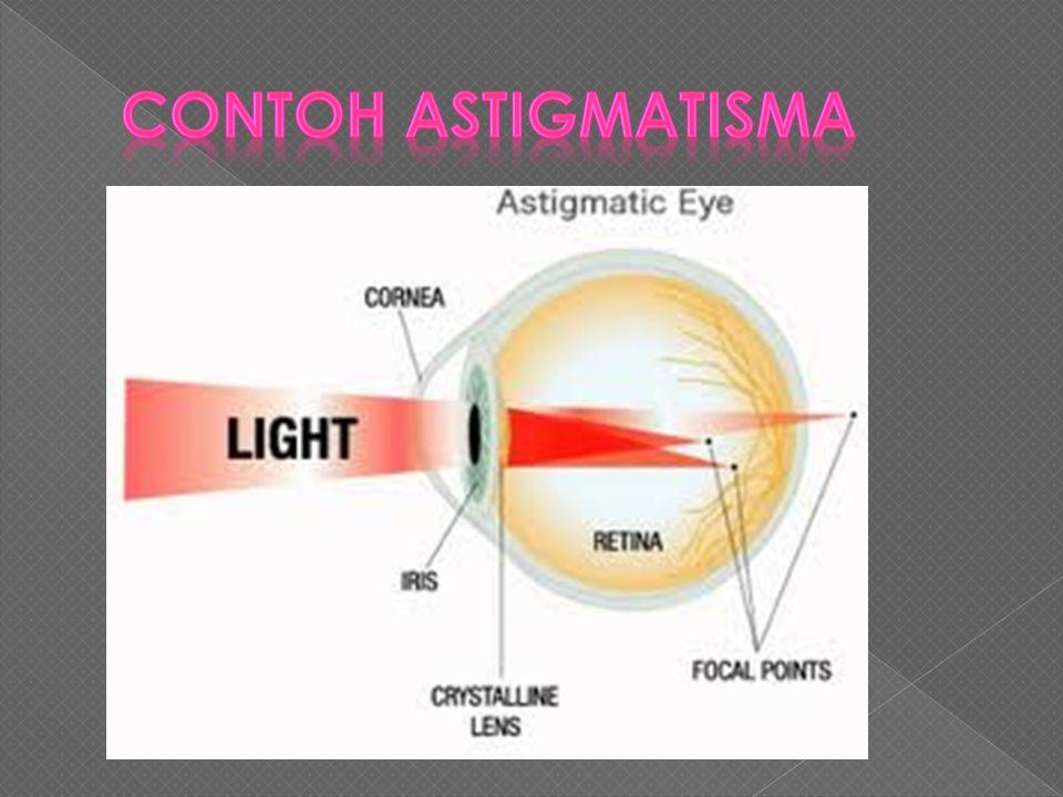  Astigmatisma (Silinder) merupakan kelainan yang disebabkan bola mata atau permukaan lensa mata mempunyai kelengkungan yang tidak sama, sehingga foku