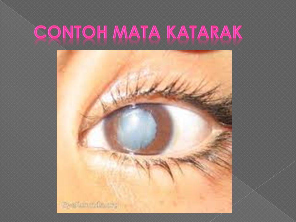  Katarak adalah cacat mata, yaitu buramnya dan berkurang elastisitasnya lensa mata. Hal ini terjadi karena adanya pengapuran pada lensa. Pada orang y