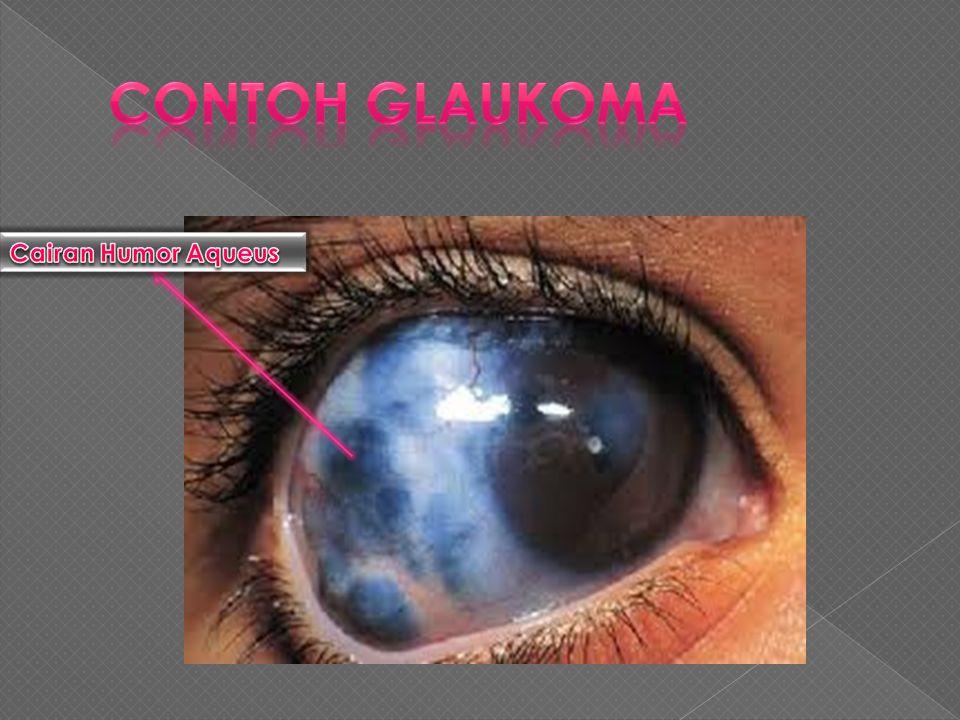  Penyebabnya adalah Bilik anterior dan Posterior Mata terisi oleh cairan Encer yg Bernama Humor Aqueus Cairan ini di hasilkan di dalam Bilik Posterio
