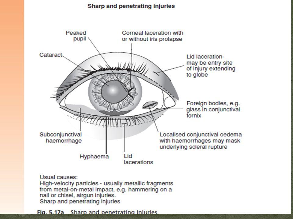 Hindari manipulasi lebih lanjut, jika jelas tampak ruptur bola mata Beri antibiotik broad spektrum Berikan analgetik, antitoksin tetanus