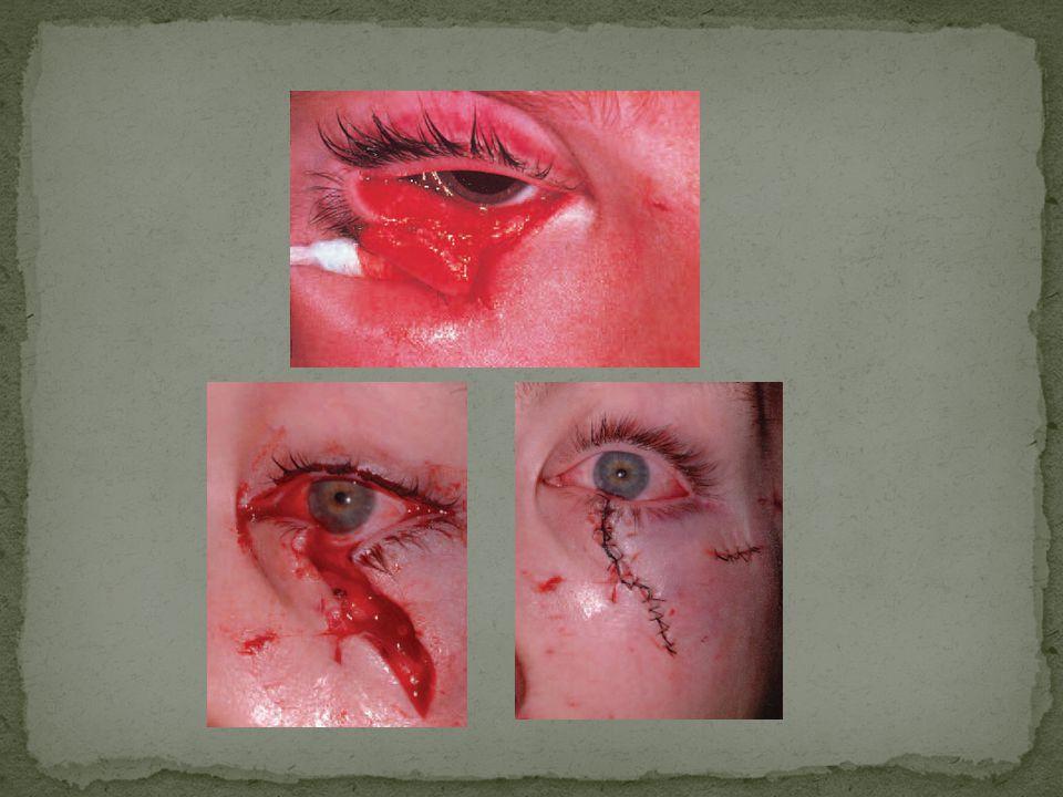 Toksik IOFB Endoftalmitis Kerusakan jaringan Ablasio retina