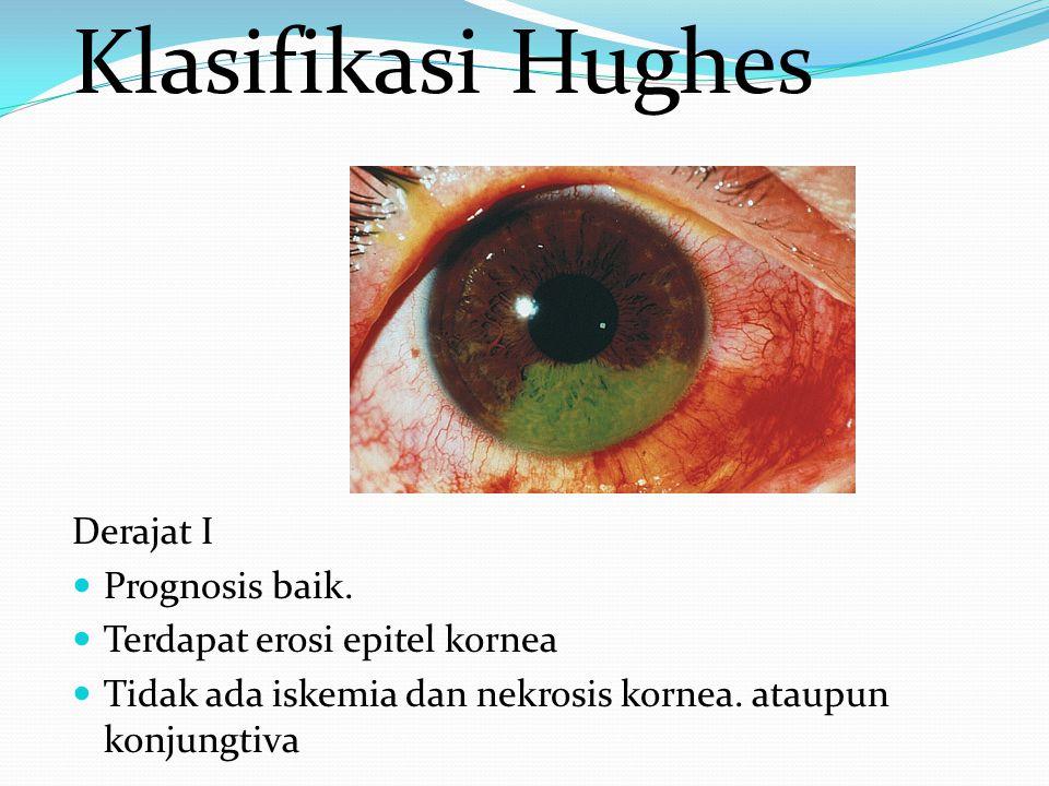Klasifikasi Hughes Derajat I Prognosis baik. Terdapat erosi epitel kornea Tidak ada iskemia dan nekrosis kornea. ataupun konjungtiva