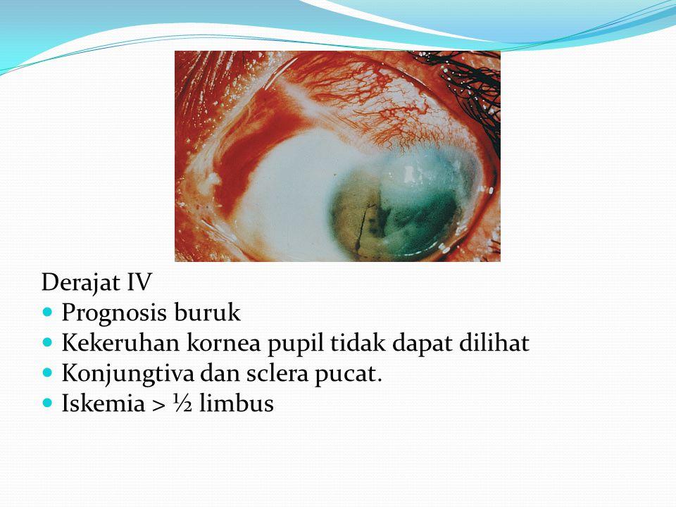 Derajat IV Prognosis buruk Kekeruhan kornea pupil tidak dapat dilihat Konjungtiva dan sclera pucat. Iskemia > ½ limbus
