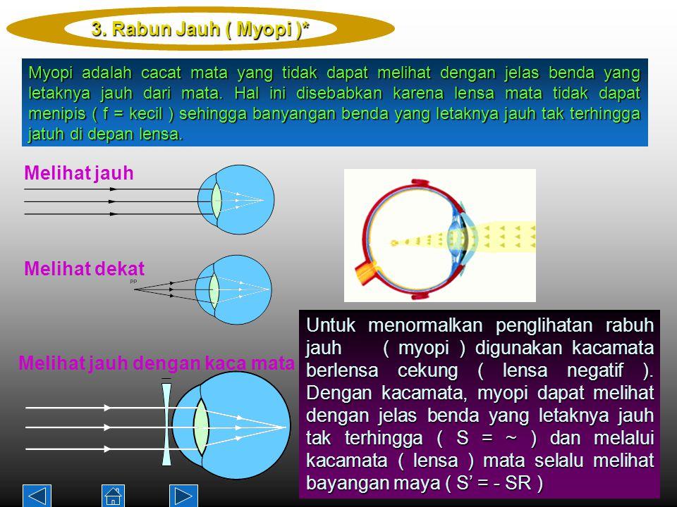 Myopi adalah cacat mata yang tidak dapat melihat dengan jelas benda yang letaknya jauh dari mata.