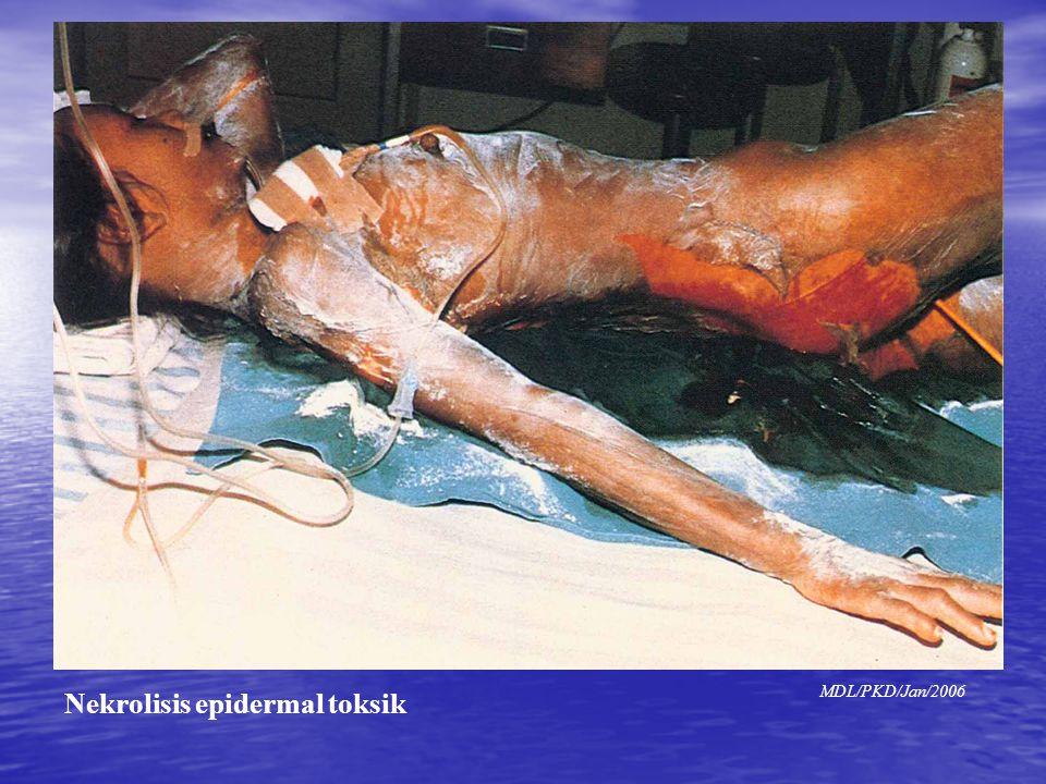 Gambar NET Gambar NET MDL/PKD/Jan/2006 Nekrolisis epidermal toksik