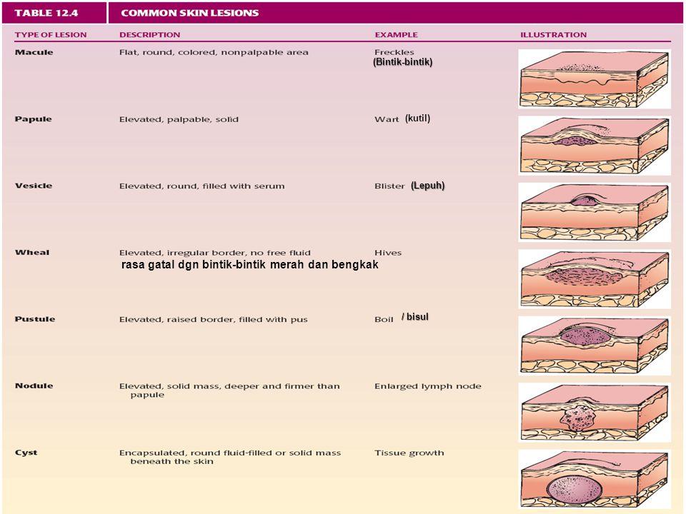 17 (Bintik-bintik) (kutil) (Lepuh) rasa gatal dgn bintik-bintik merah dan bengkak / bisul