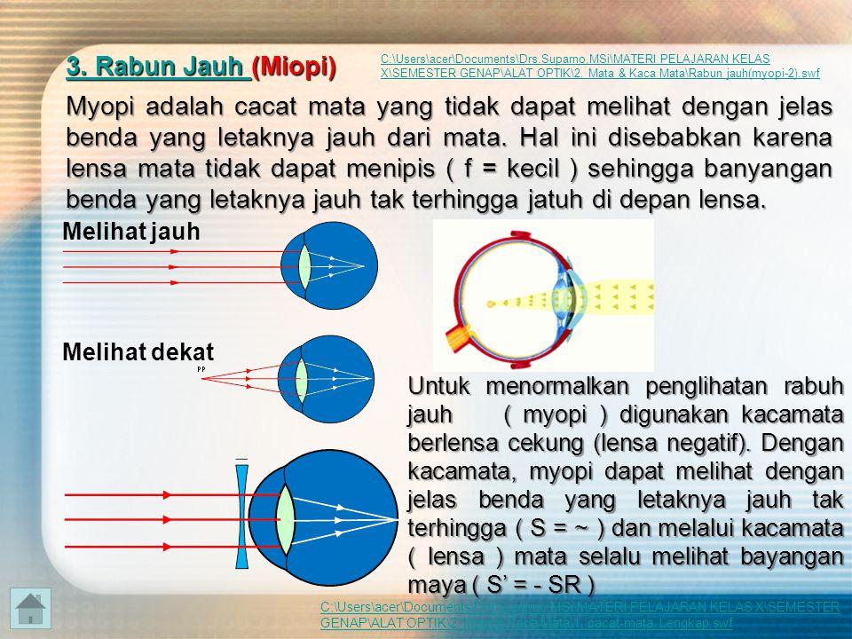 3333.... R R R R aaaa bbbb uuuu nnnn J J J J aaaa uuuu hhhh ( ( ( ( (Miopi) Myopi adalah cacat mata yang tidak dapat melihat dengan jelas benda yang l