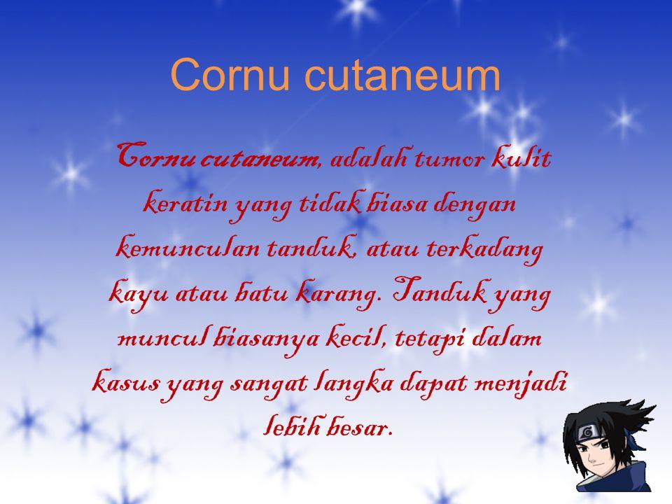 Cornu cutaneum Cornu cutaneum, adalah tumor kulit keratin yang tidak biasa dengan kemunculan tanduk, atau terkadang kayu atau batu karang. Tanduk yang