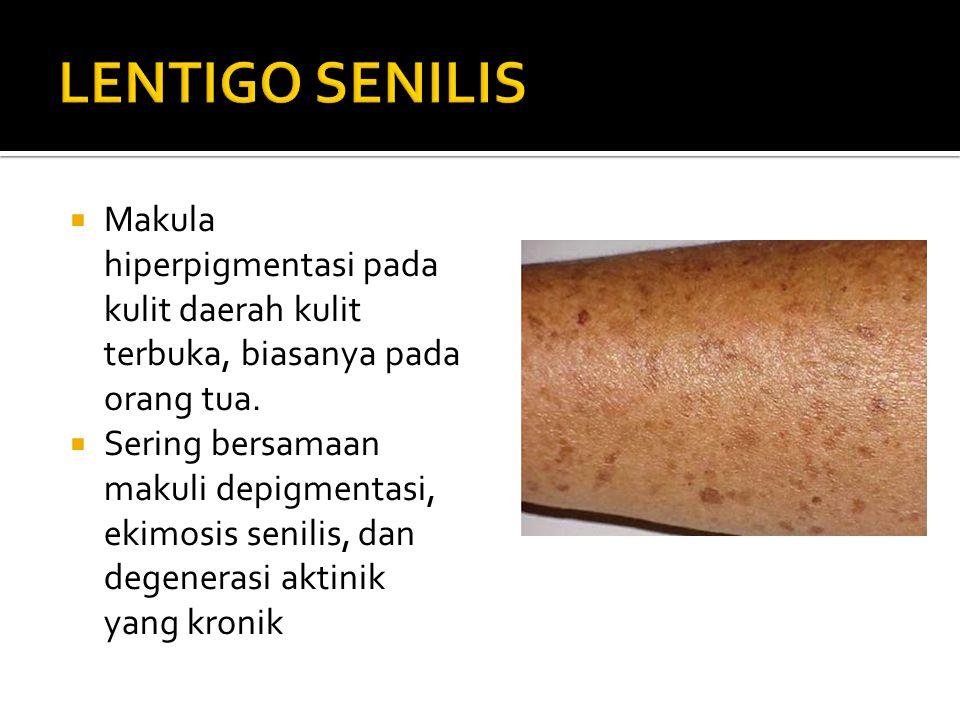  Makula hiperpigmentasi pada kulit daerah kulit terbuka, biasanya pada orang tua.  Sering bersamaan makuli depigmentasi, ekimosis senilis, dan degen
