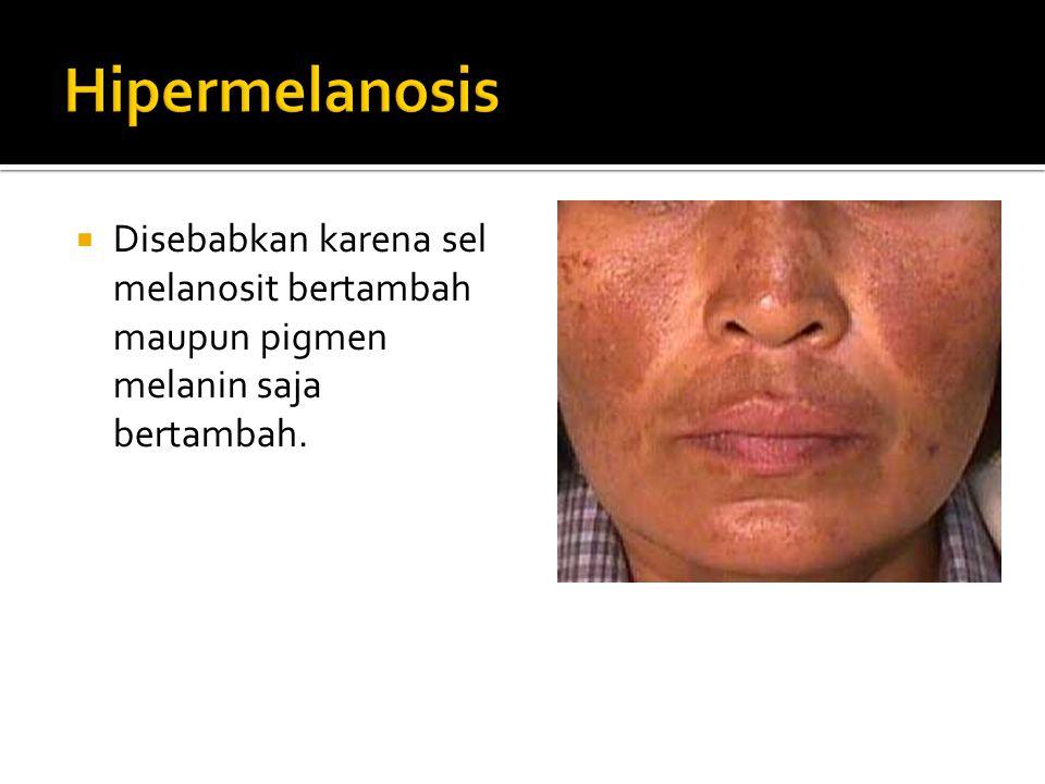  Fitzpatrick (berdasarkan distribusi melanin dalam kulit):  Hipermelanosis coklat bila melanin terletak pada epidermis  Hipermelanosis abu-abu bila pigmen melanin terletak dalam dermis.