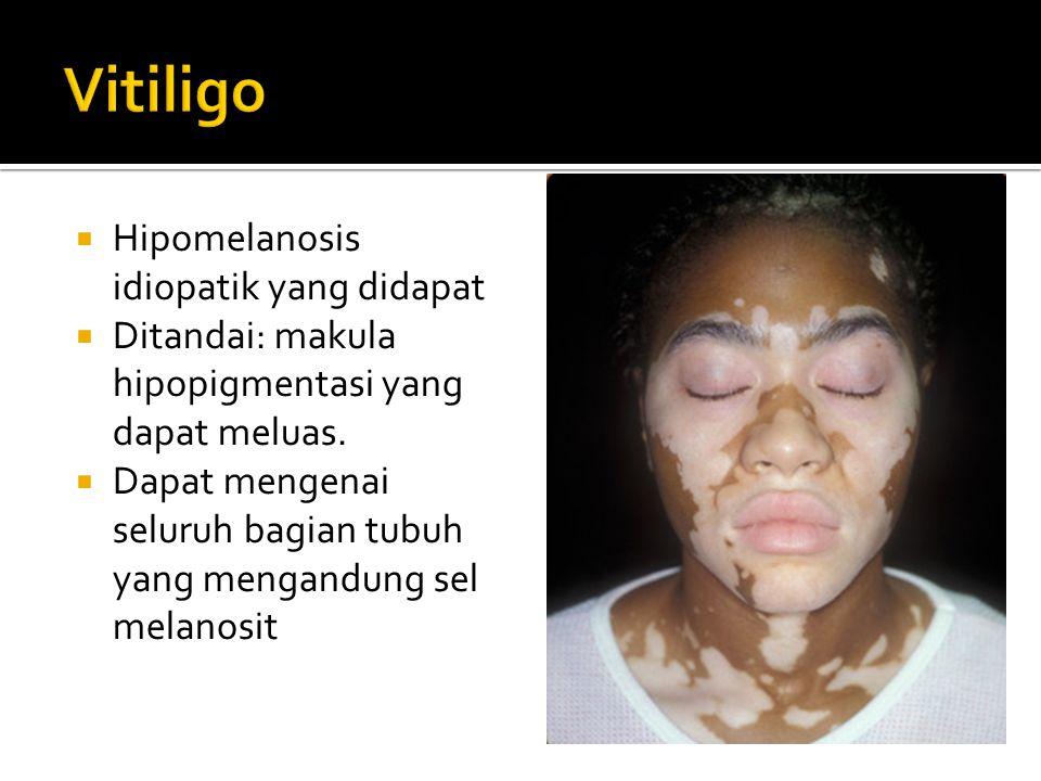  Hipomelanosis idiopatik yang didapat  Ditandai: makula hipopigmentasi yang dapat meluas.  Dapat mengenai seluruh bagian tubuh yang mengandung sel