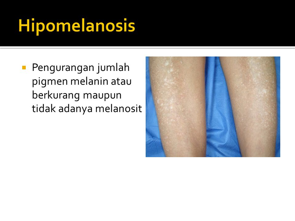  Pengurangan jumlah pigmen melanin atau berkurang maupun tidak adanya melanosit