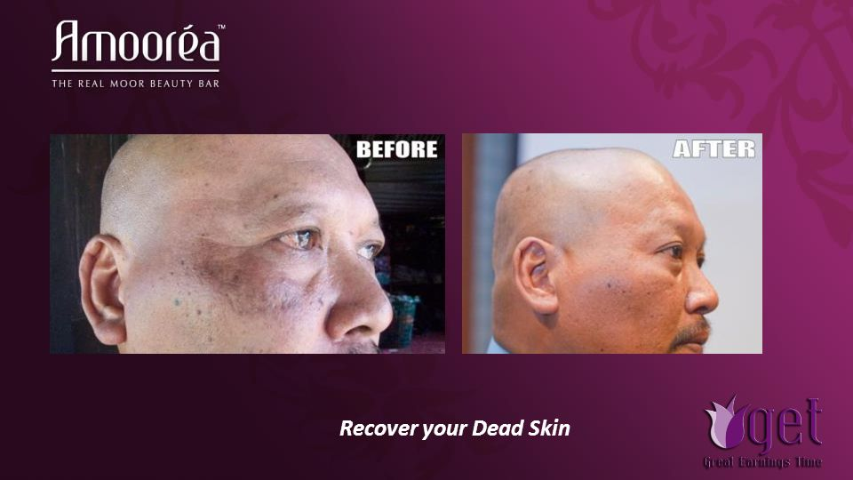 Recover your Dead Skin