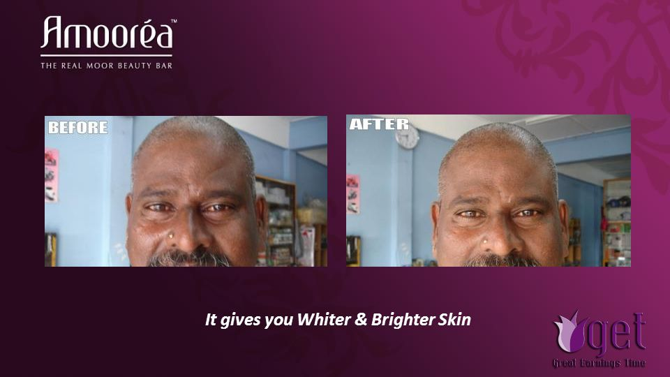 It gives you Whiter & Brighter Skin