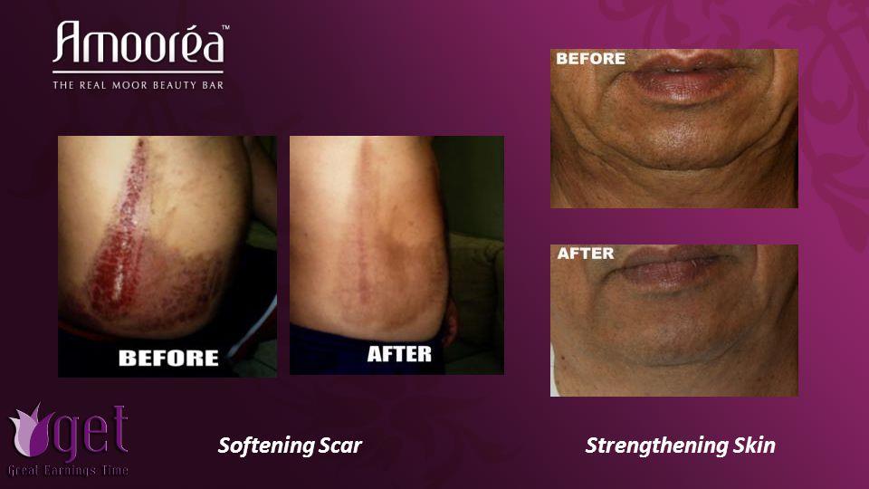 Softening ScarStrengthening Skin