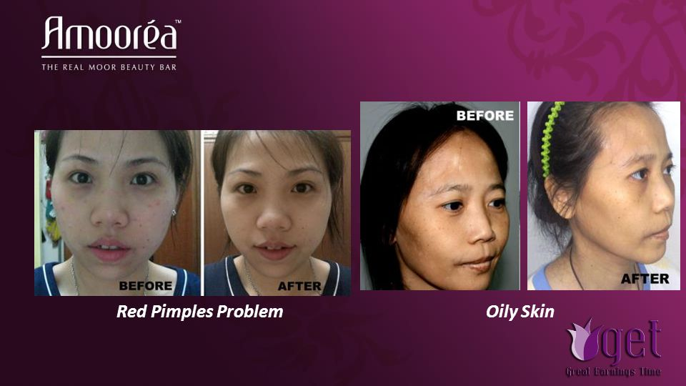 Red Pimples ProblemOily Skin