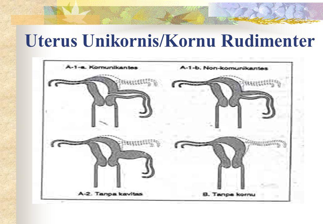 Uterus Unikornis/Kornu Rudimenter