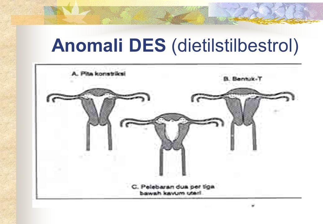 Anomali DES (dietilstilbestrol)