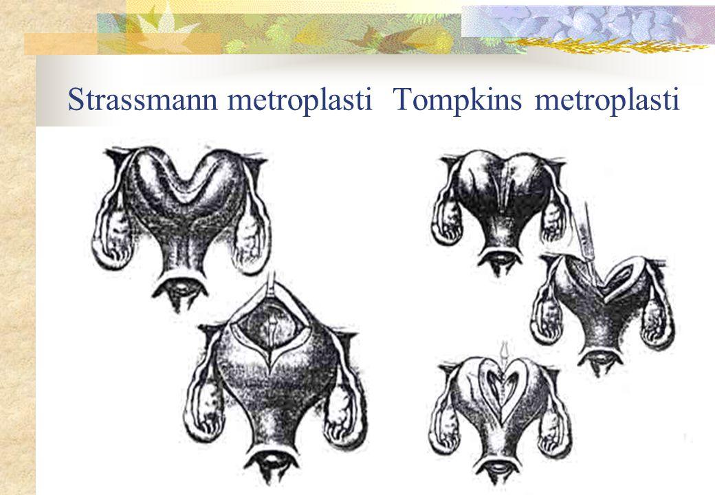 Strassmann metroplasti Tompkins metroplasti
