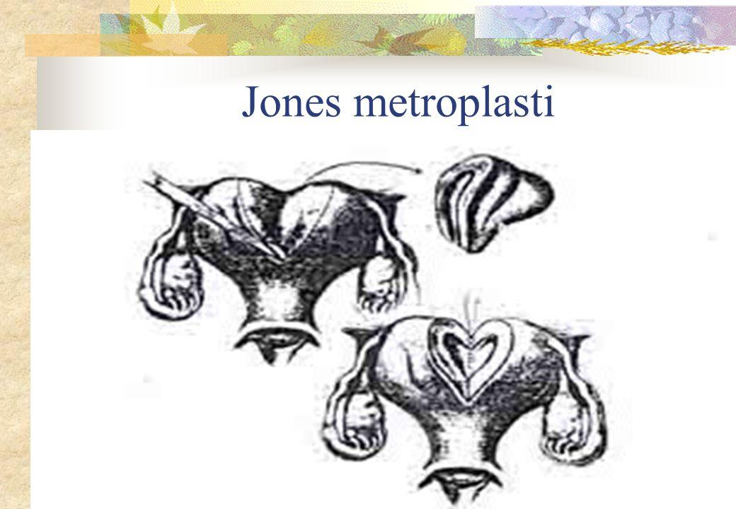 Jones metroplasti