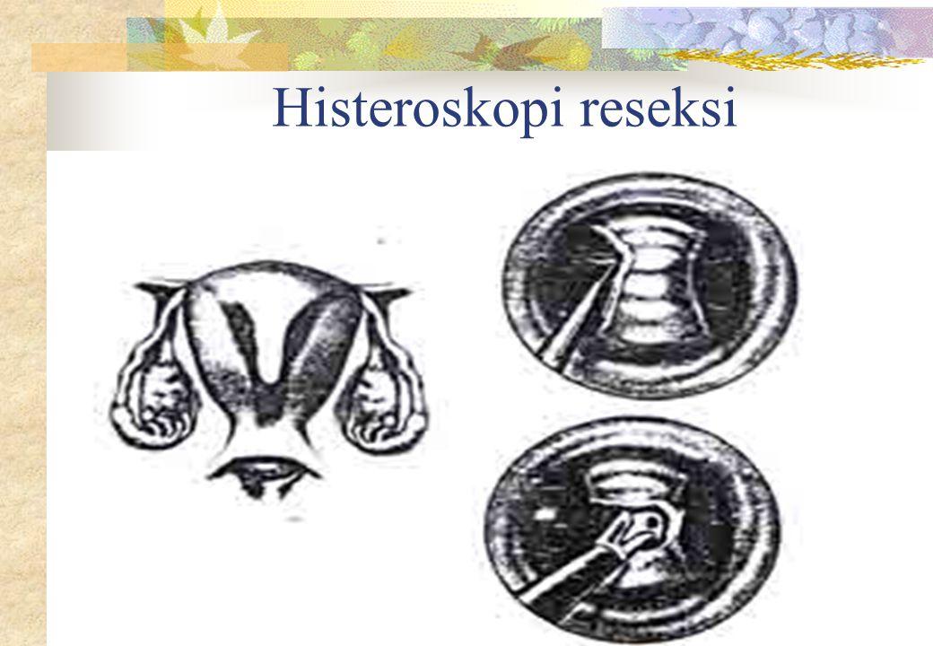 Histeroskopi reseksi