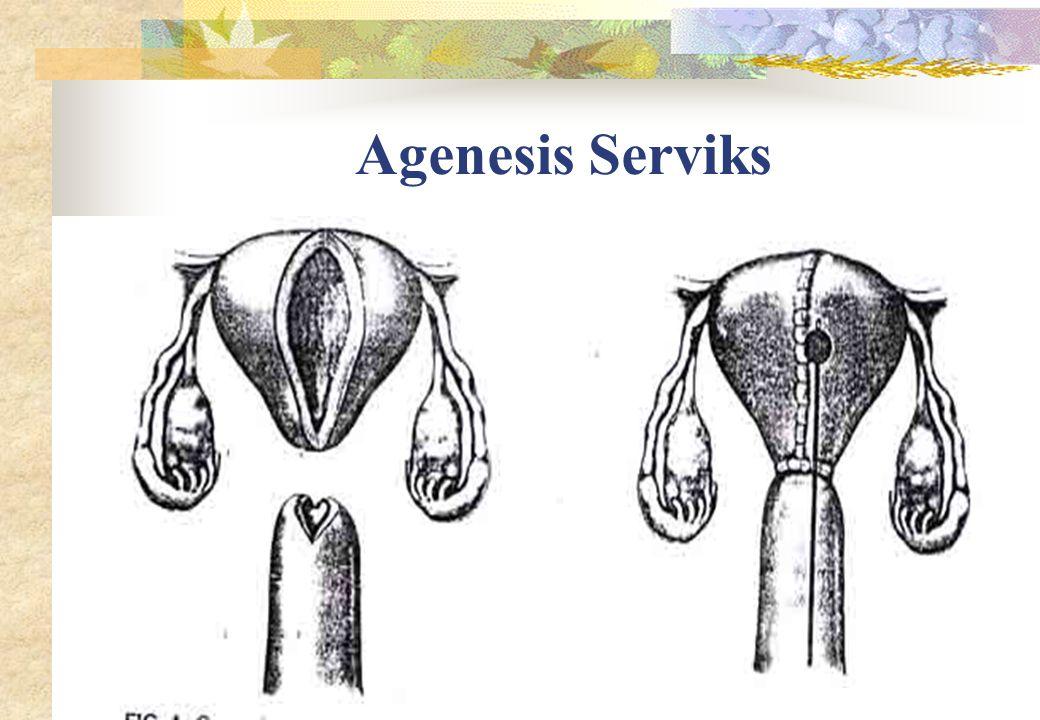 Agenesis Serviks
