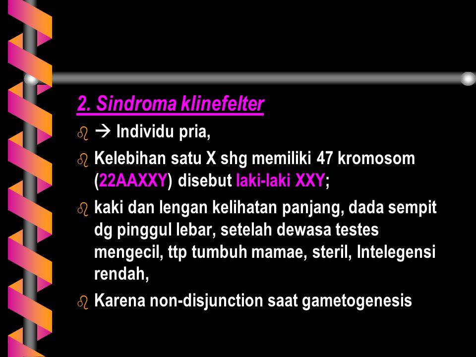 2. Sindroma klinefelter b b  Individu pria, b b Kelebihan satu X shg memiliki 47 kromosom (22AAXXY) disebut laki-laki XXY; b b kaki dan lengan keliha