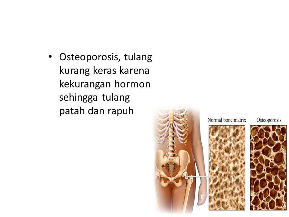 Osteoporosis, tulang kurang keras karena kekurangan hormon sehingga tulang patah dan rapuh