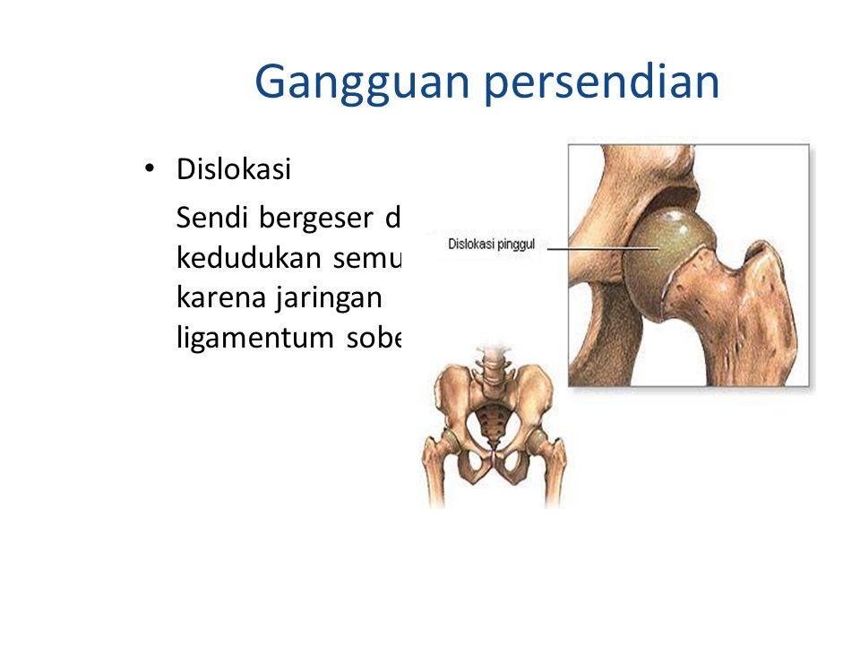 Gangguan persendian Dislokasi Sendi bergeser dari kedudukan semula karena jaringan ligamentum sobek.