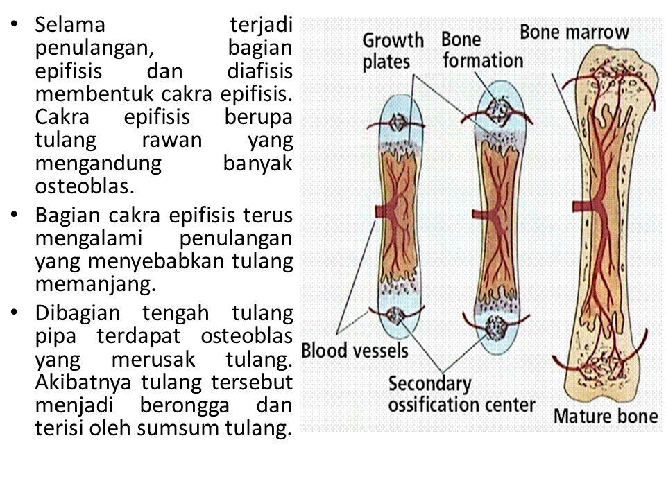 Memar sendi Selaput sendi mengalami robek Urai Sendi memar sendi yang diikuti lepasnya ujung tulang dari persendian