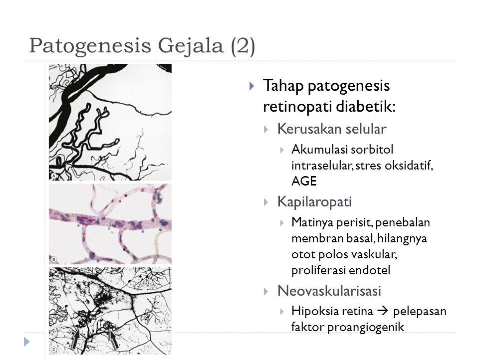 Patogenesis Gejala (3)  Klasifikasi Retinopati Diabetik  Background diabetic retinopathy (BDR)  Mikroaneurisma, perdarahan dot dan blot, eksudat  Prepoliferative diabetic retinopathy (PPDR)  Cotton wool spots, perubahan vv, intraretinal microvascular anomalies (IRMA), perdarahan retina dalam  Risiko tinggi akan progresi ke neovaskularisasi retina  Proliferative diabetic retinopathy (PDR)  Neovaskularisasi, baik NVD (disc) maupun NVE (elsewhere)  Advanced diabetic eye disease  Ablasio retina tipe traksi, perdarahan vitreus persisten, glaukoma neovaskular