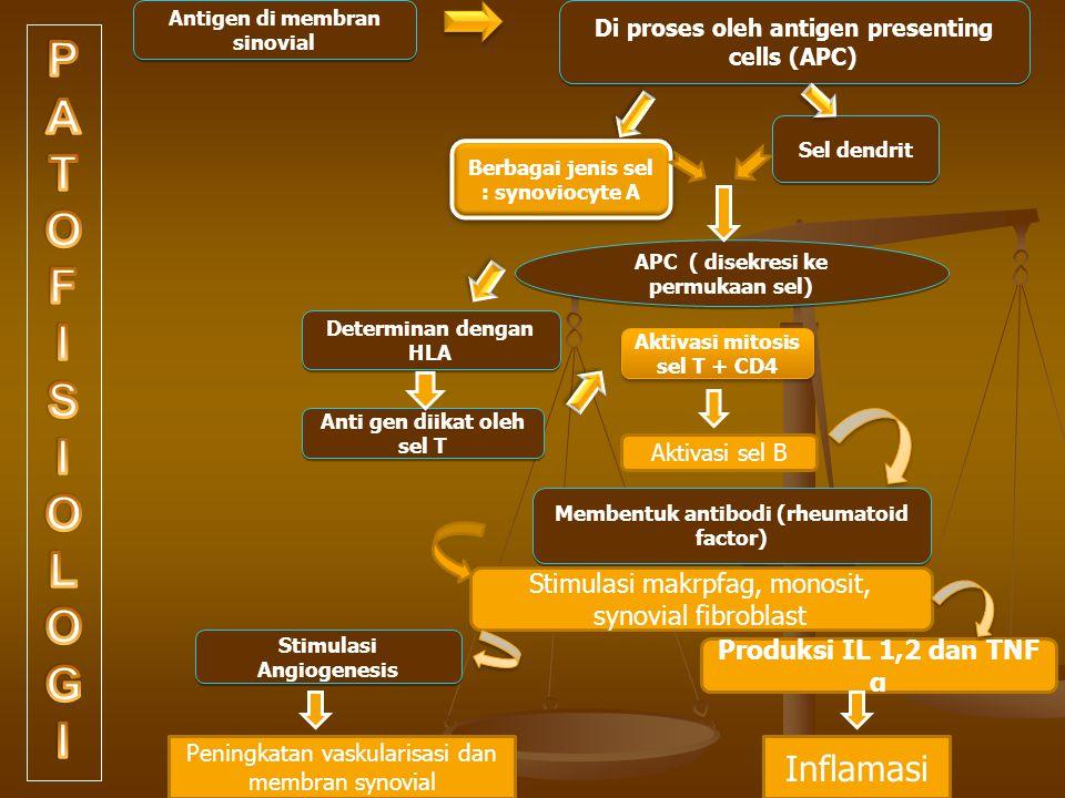 Antigen di membran sinovial Di proses oleh antigen presenting cells (APC) Berbagai jenis sel : synoviocyte A Sel dendrit APC ( disekresi ke permukaan sel) Determinan dengan HLA Anti gen diikat oleh sel T Aktivasi mitosis sel T + CD4 Membentuk antibodi (rheumatoid factor) Stimulasi Angiogenesis Aktivasi sel B Stimulasi makrpfag, monosit, synovial fibroblast Produksi IL 1,2 dan TNF α Peningkatan vaskularisasi dan membran synovial Inflamasi