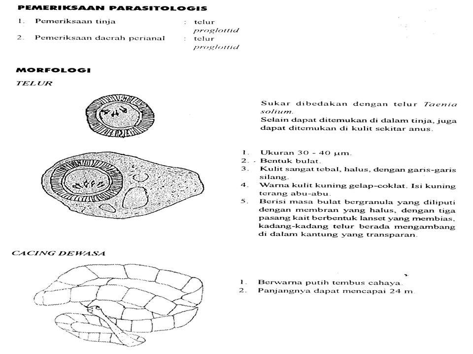 Cysticercus cellulose yg diambil dari otot babi