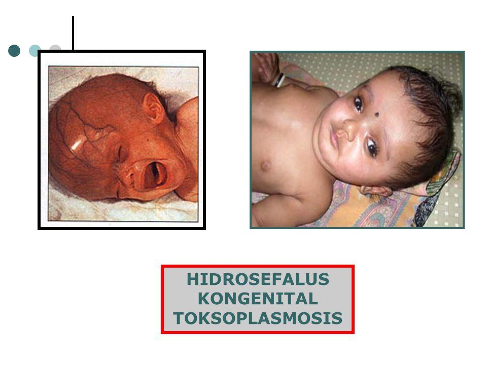 HIDROSEFALUS KONGENITAL TOKSOPLASMOSIS