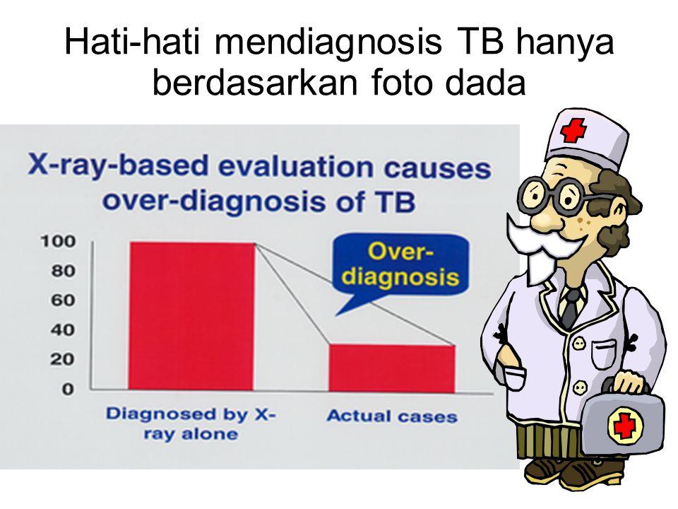 Hati-hati mendiagnosis TB hanya berdasarkan foto dada