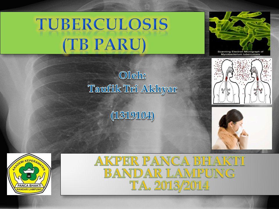 PENGERTIAN Tuberculosis (TB Paru) Tuberkulosis adalah penyakit infeksi menular yang disebabkan oleh Mycobacterium tubeculosis.