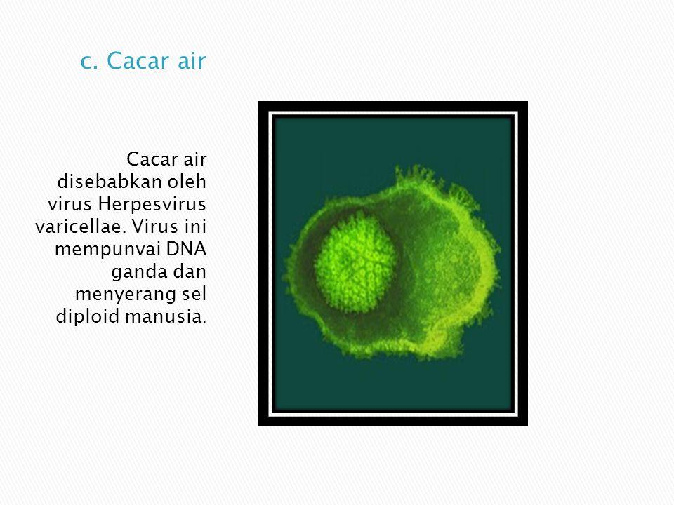 Cacar air disebabkan oleh virus Herpesvirus varicellae. Virus ini mempunvai DNA ganda dan menyerang sel diploid manusia.