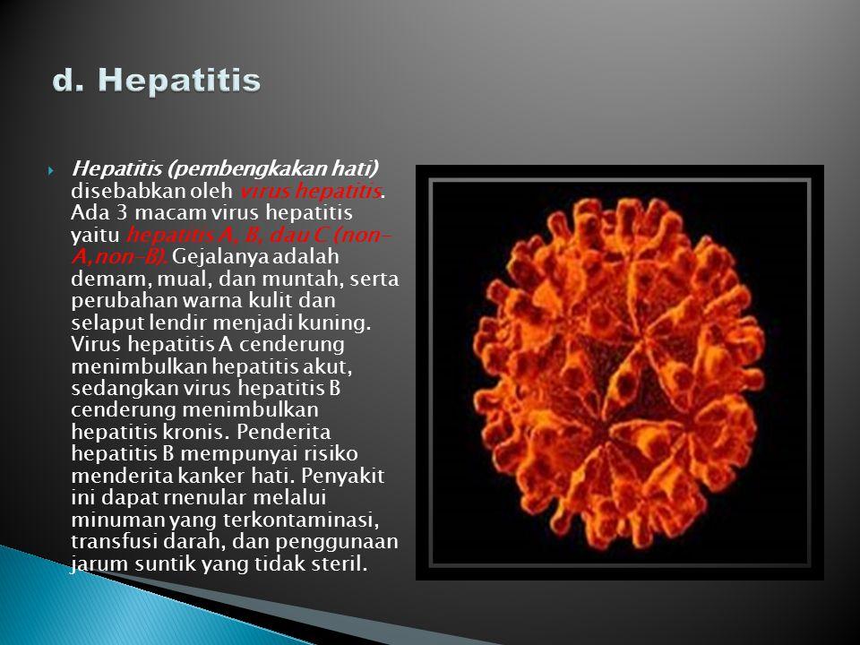  Hepatitis (pembengkakan hati) disebabkan oleh virus hepatitis. Ada 3 macam virus hepatitis yaitu hepatitis A, B, dau C (non- A,non-B). Gejalanya ada