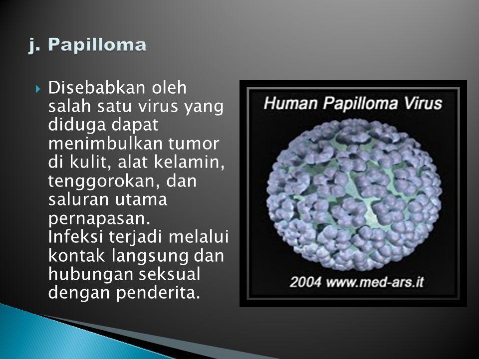  Disebabkan oleh salah satu virus yang diduga dapat menimbulkan tumor di kulit, alat kelamin, tenggorokan, dan saluran utama pernapasan. Infeksi terj